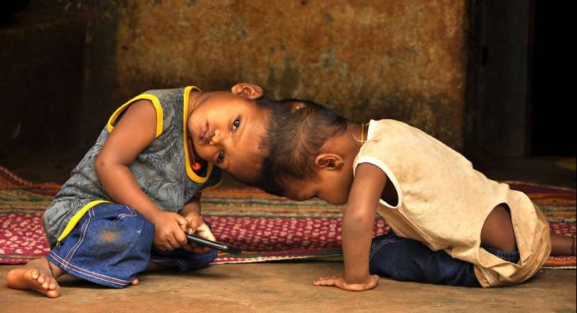 Odisha conjoined twins: Jagga shows improvement, Kalia still critical