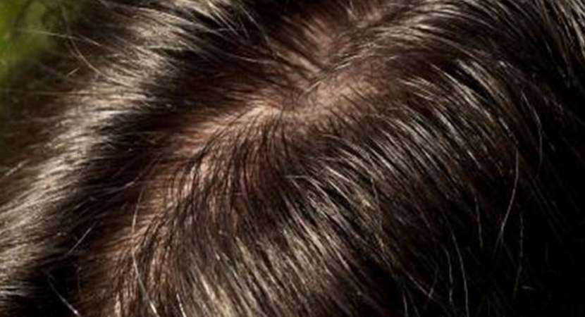 Save your scalp from dryness by avoiding chemical treatments