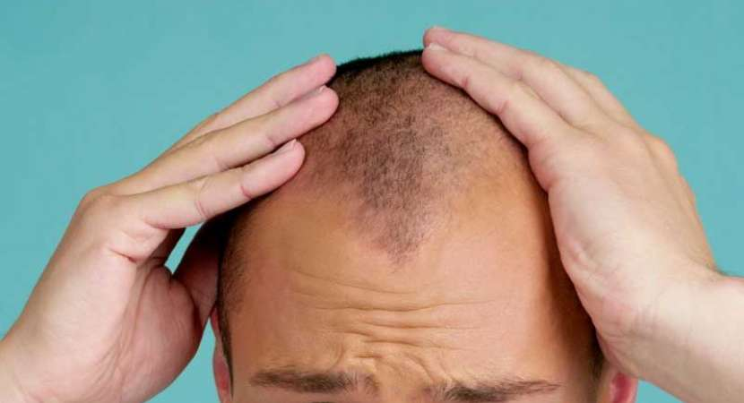 Drug Created To Treat Osteoporosis Could Also Be The Cure For Baldness